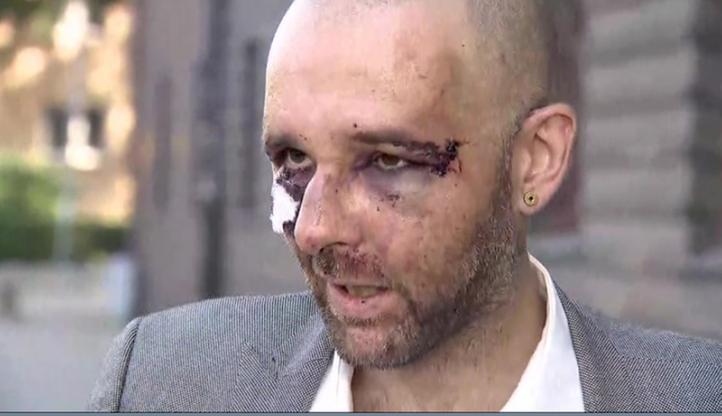 Policja zatrzymała mężczyznę podejrzewanego o pobicie dziennikarza